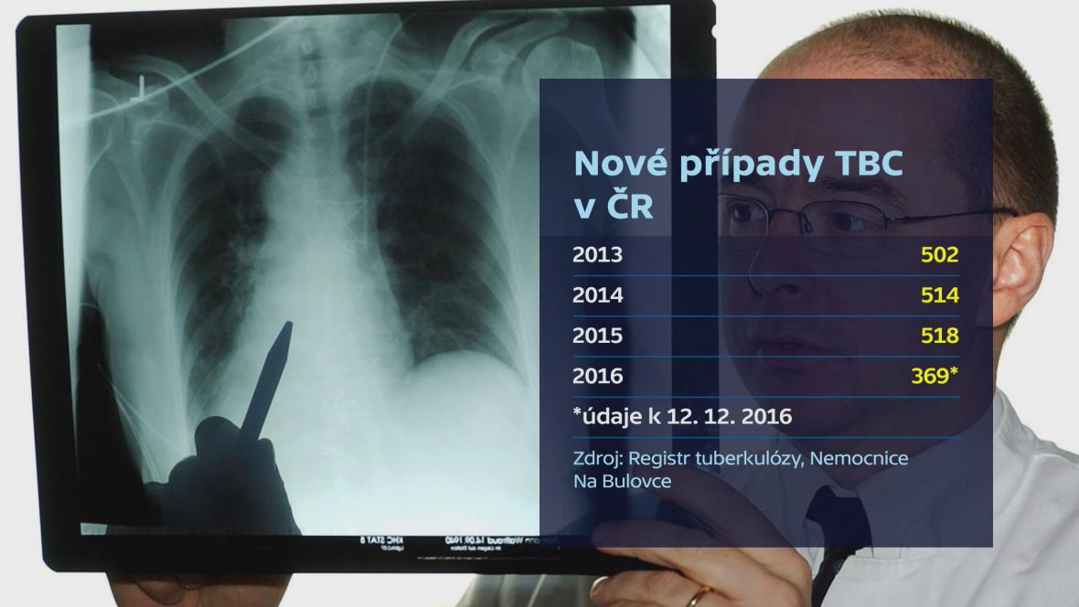 Výskyt tuberkulózy