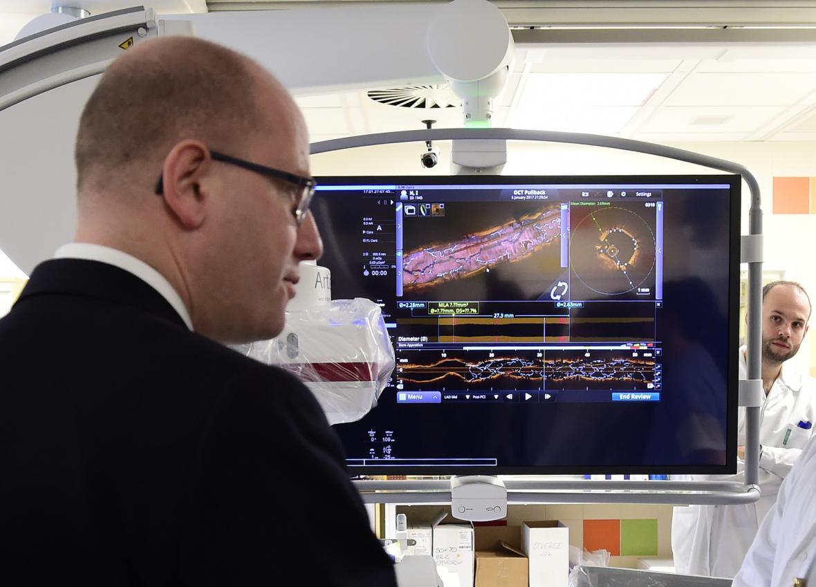 Bohuslav Sobotka v katetrizační laboratoři II. interní kliniky VFN