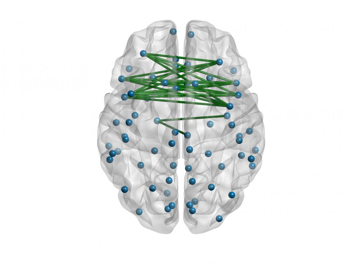 Propojení mezi mozkovými hemsférami