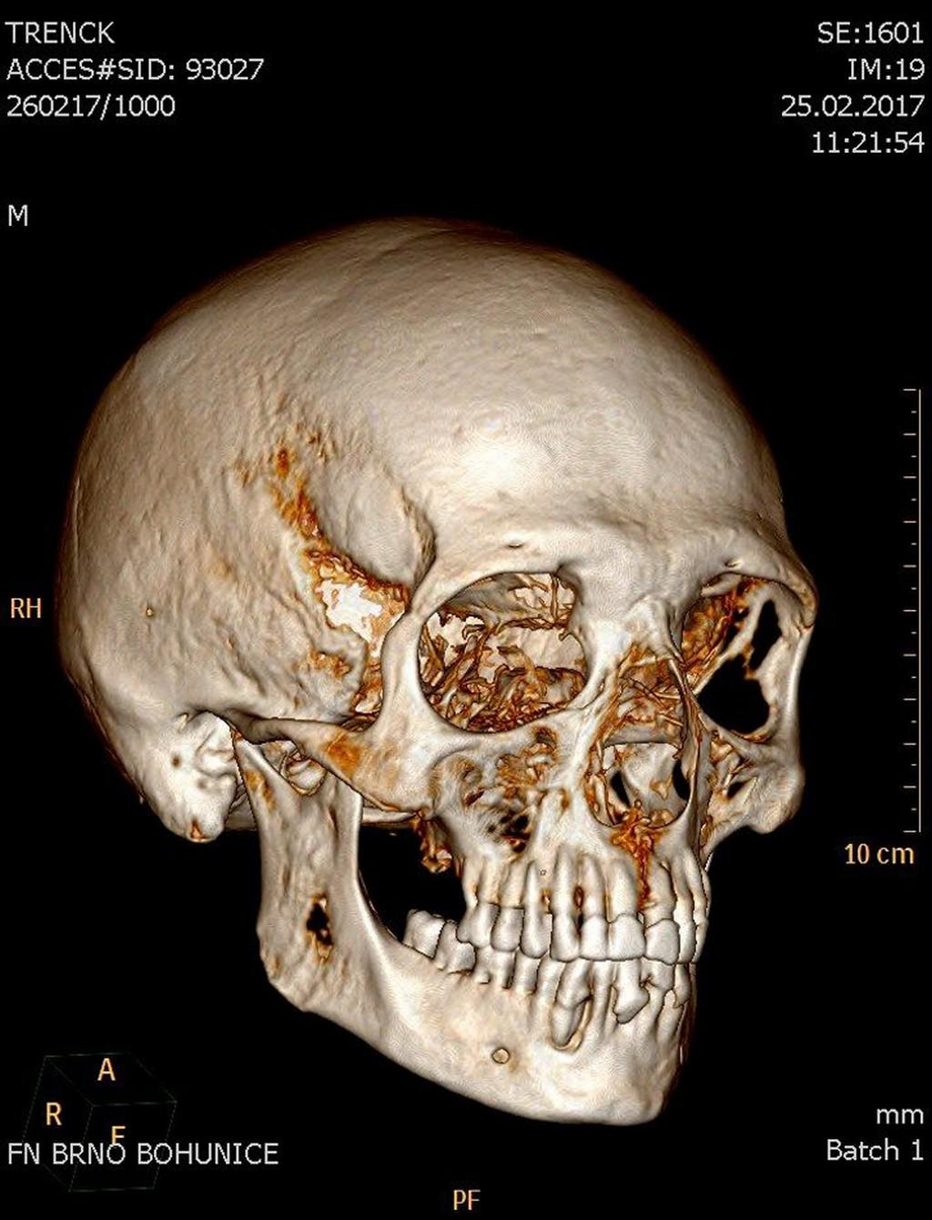Snímek lebky mumie barona Trencka
