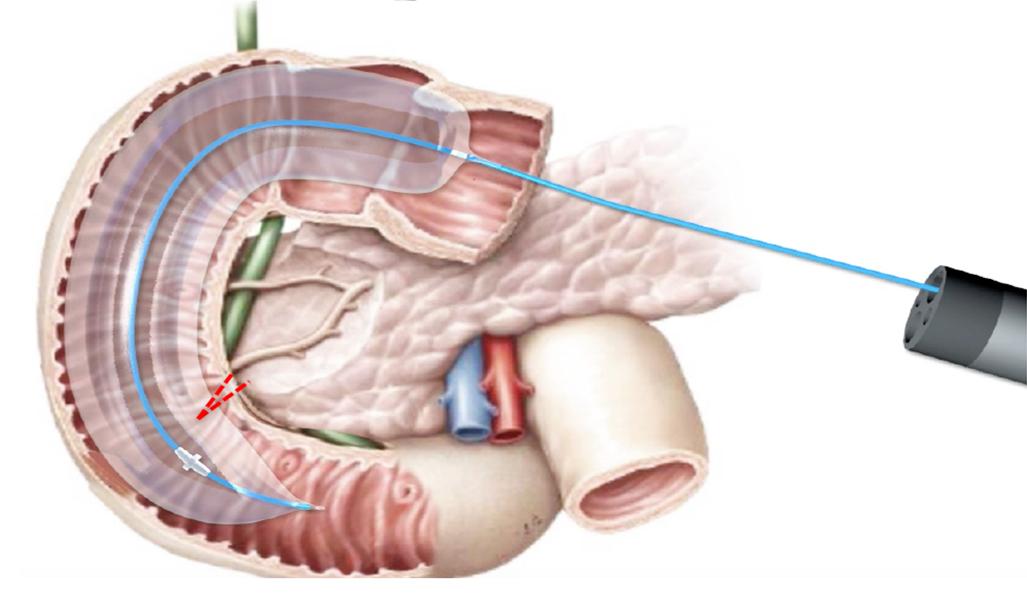 Léčba diabetu 2. typu laserem zasáhne dvanáctník
