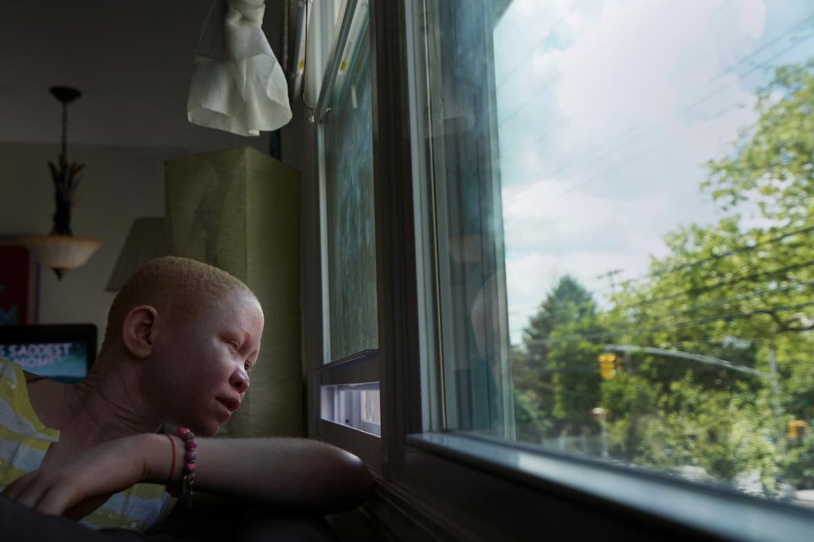 16letý Pendo Noni přišel kvůli rituálním pověrám o ruku. V New Yorku má dostat protézu