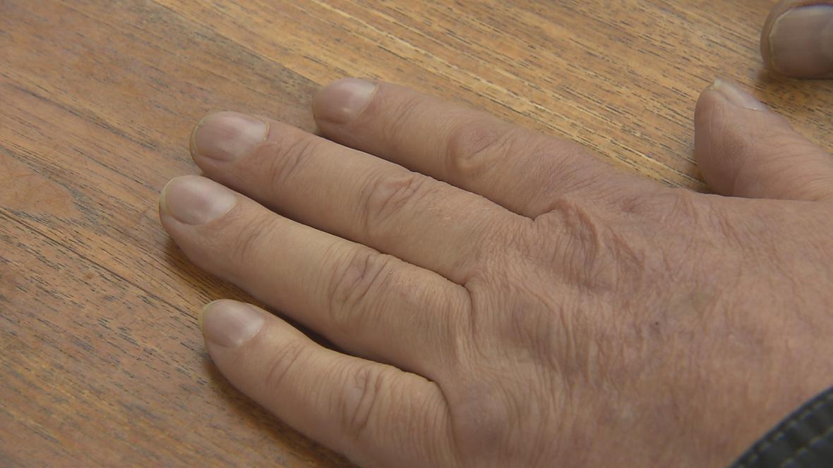 Prsty pacienta s plicní fibrózou