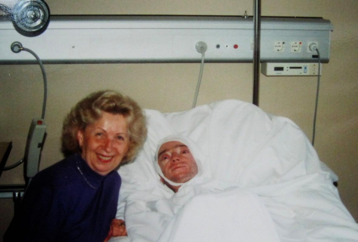 Julius Varga po operaci ve Vídni v roce 1994