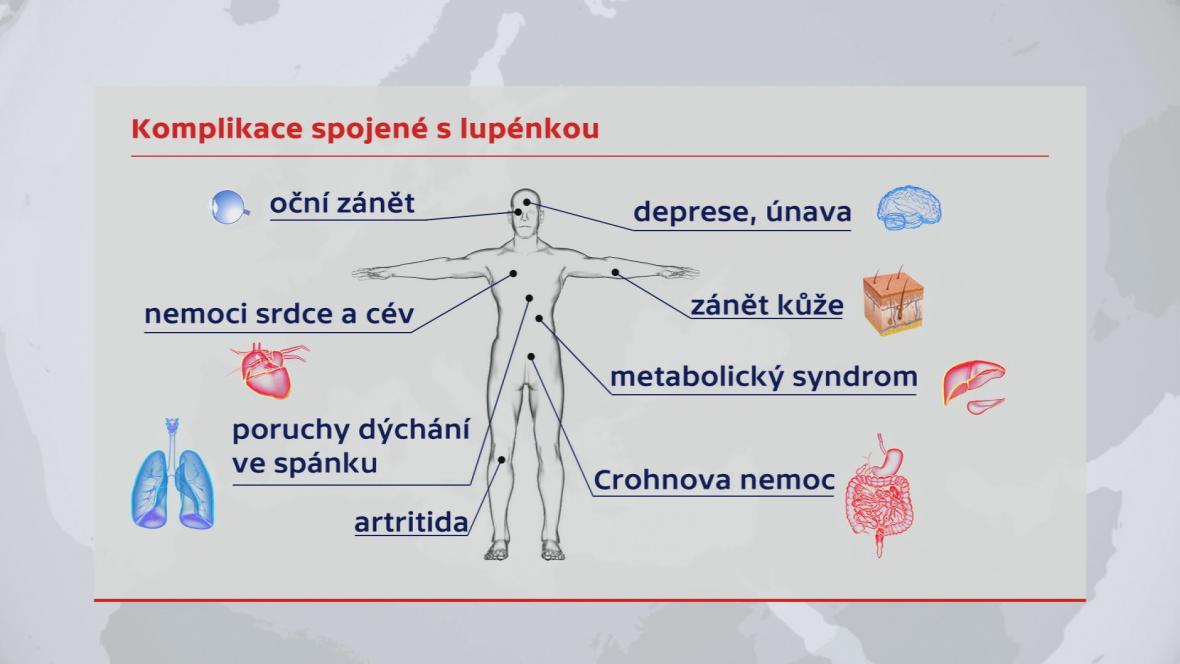 Komplikace spojené s lupénkou