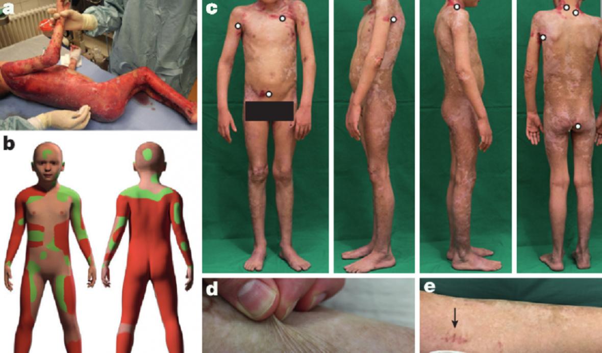 Ilustrace pokroku léčby