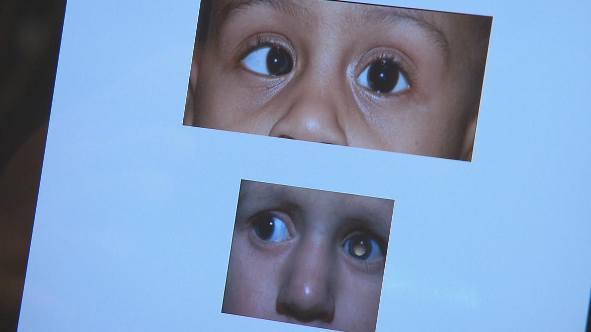 Nádor oka retinoblastom
