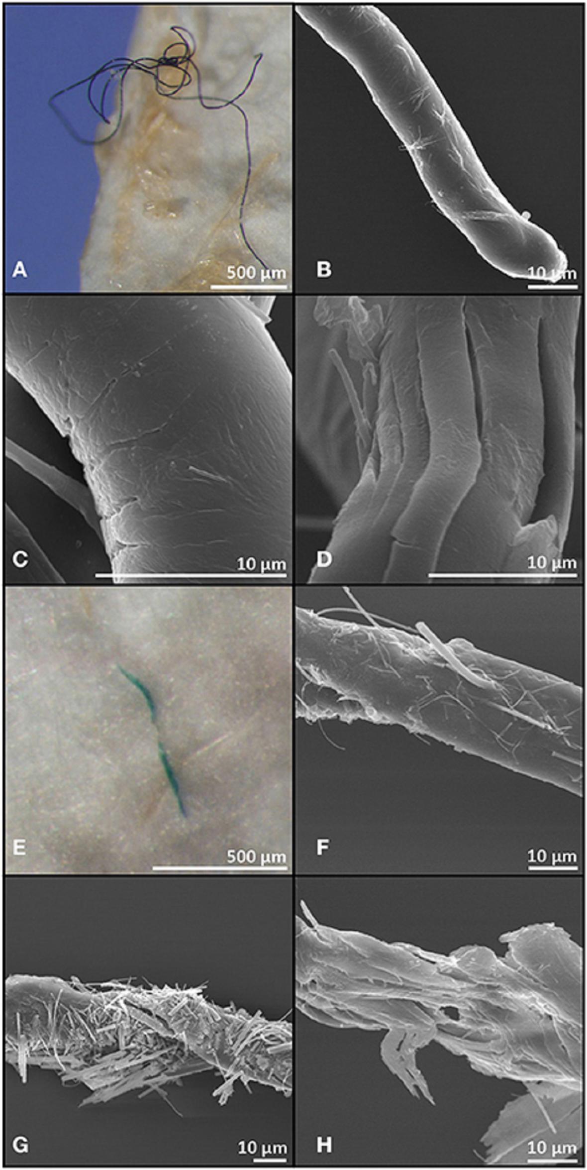 Ukázky mikroplastů nalezených v rybách