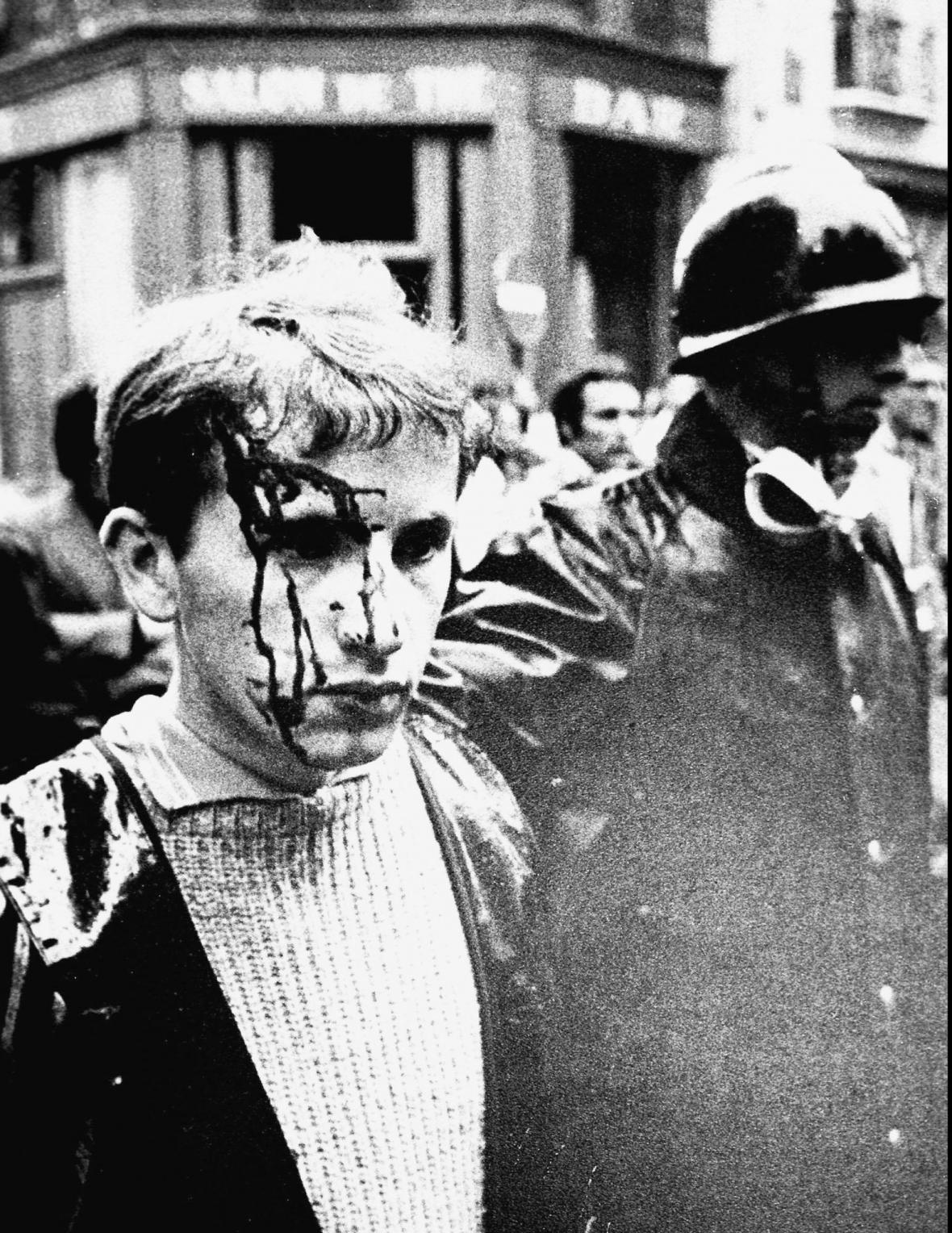 Student zraněný po potyčkách s policií v Paříži v květnu 1968