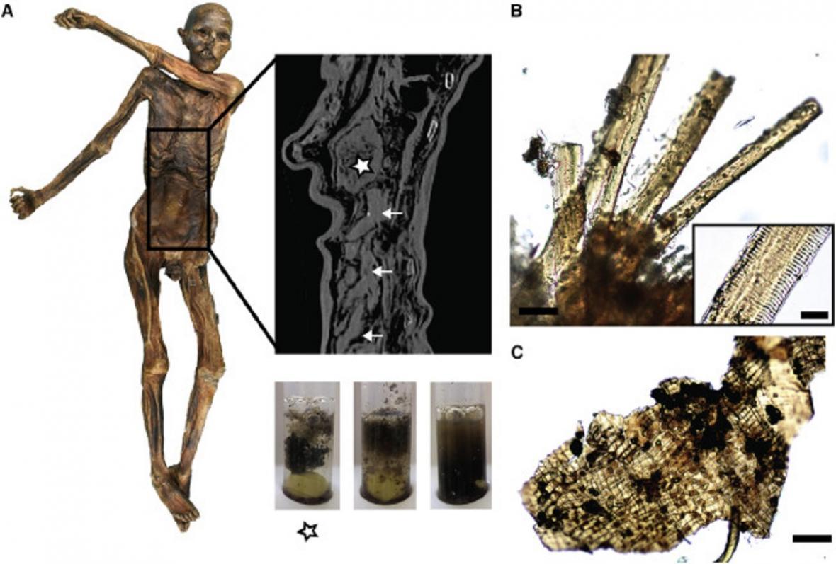 Nález v Ötziho žaludku