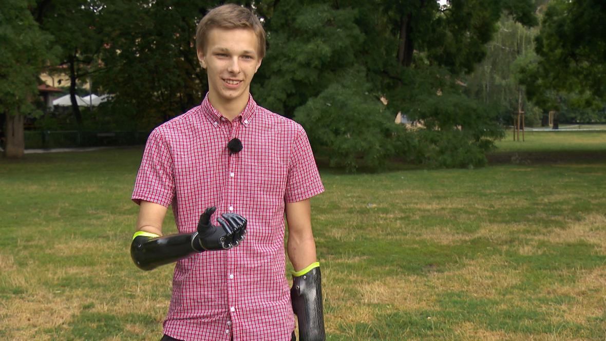 Jan Kříž má bionické ruce rok a půl