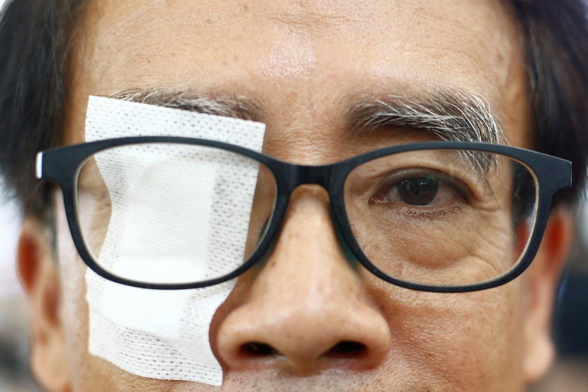Hongkongský protestující upozorňuje na násilí ze strany policistů