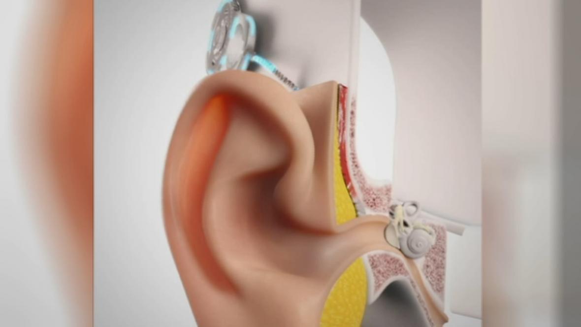 Model kochleárního implantátu
