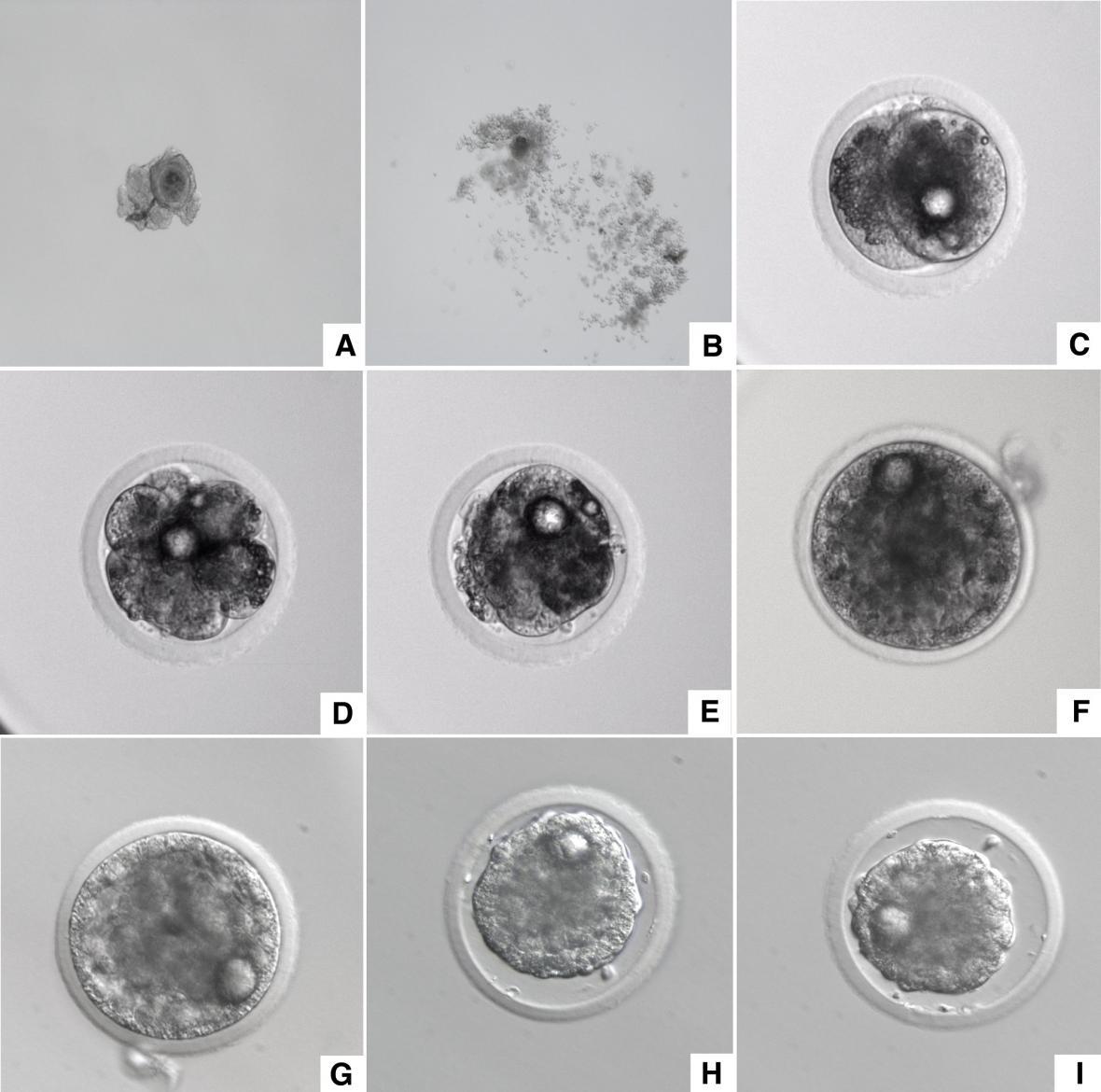 Vývoj embrya