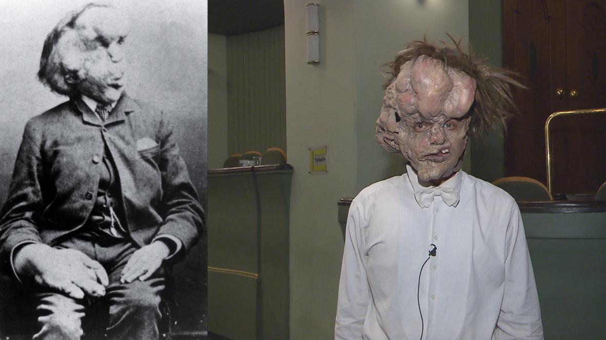 Vlevo historická fotografie Joseph Merrick, vpravo herec Tomáš Havlínek s maskou