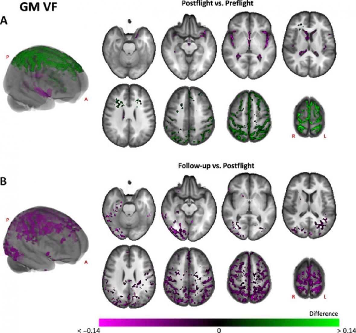 Změny mozku před pobytem v kosmu a po něm