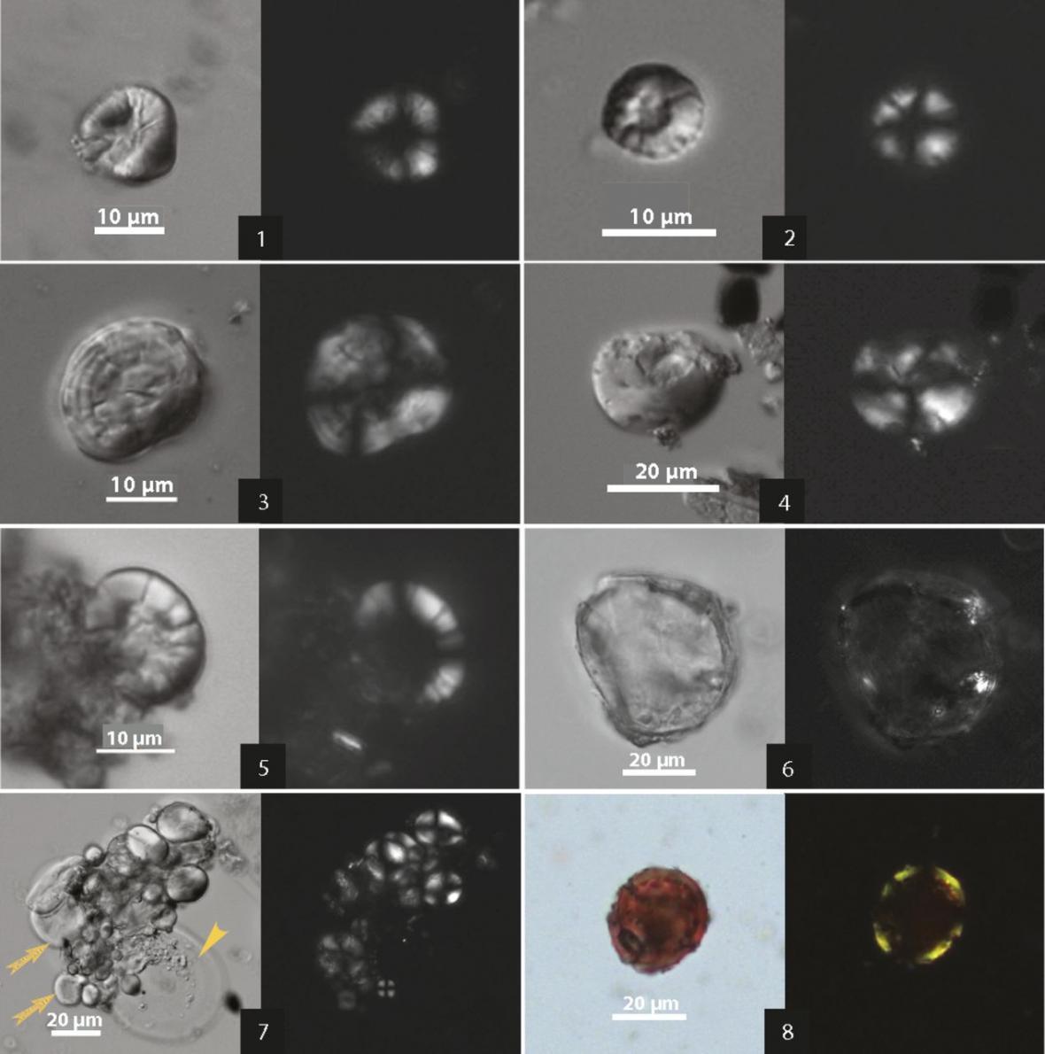 Rostlinné zbytky nalezené v nádobách - pozorované pod mikroskopem