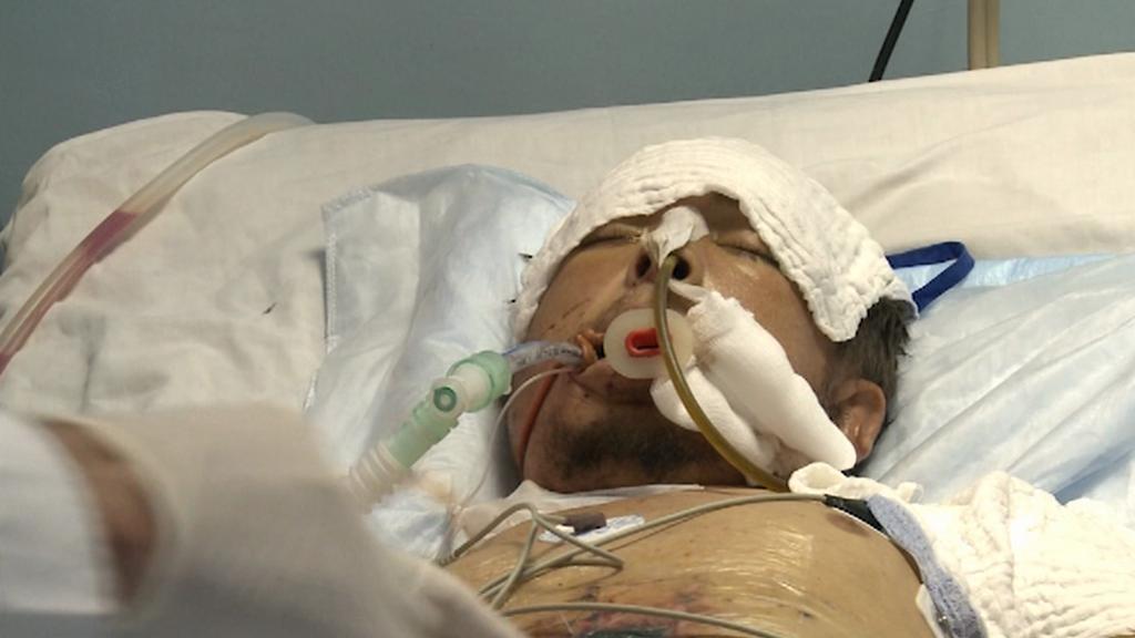 Těžce zranění Syřan Rami