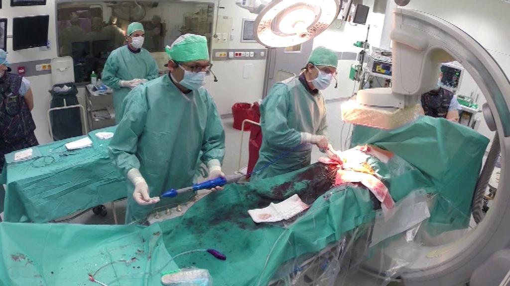 Implantace chlopně nové generace poprvé v Podlesí