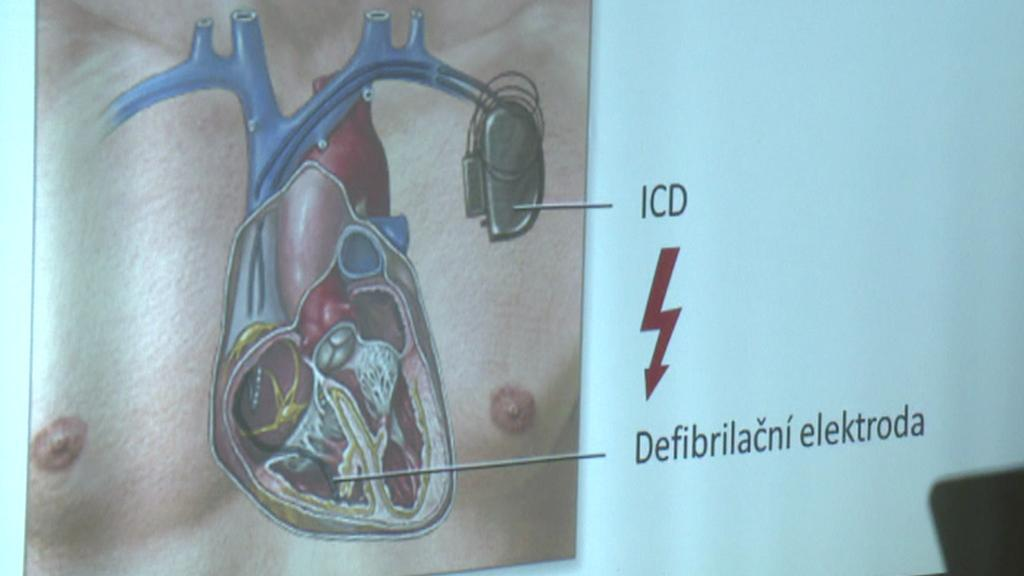 ICD přístroj