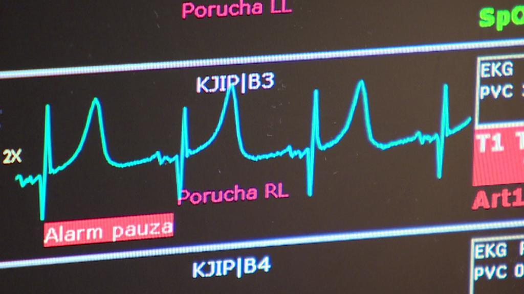 Zobrazení činnosti srdce