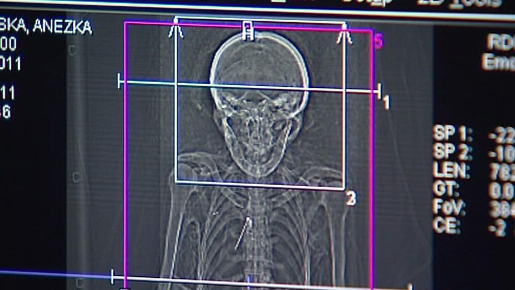 Mumie z klatovských katakomb na CT vyšetření - březen 2011