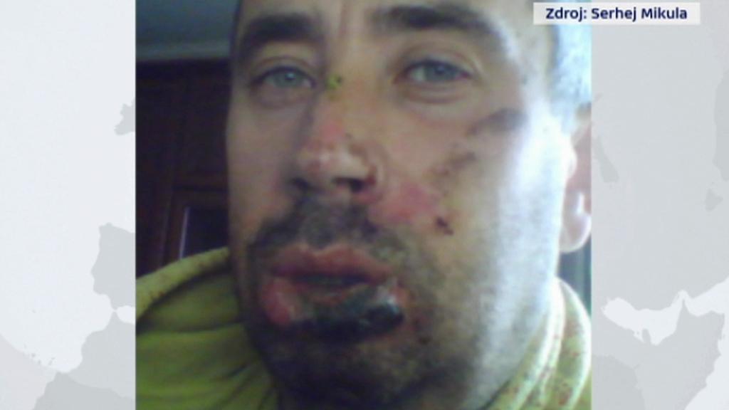 Snímek Mikuly po incidentu z minulého týdne