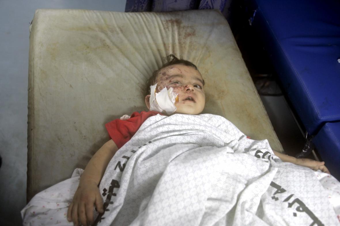 Oběť bombardování v Gaze