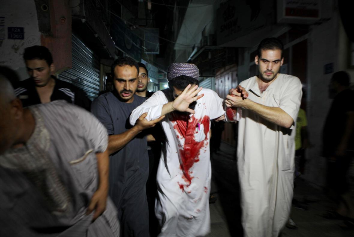 Zraněný Palestinec po izraelském ostřelování Pásma Gazy