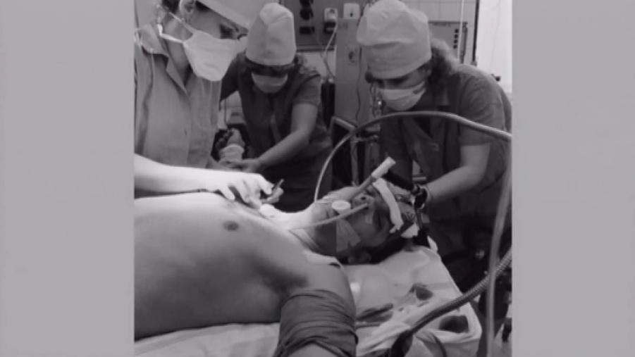 První transplantace jater v Brně (1983)