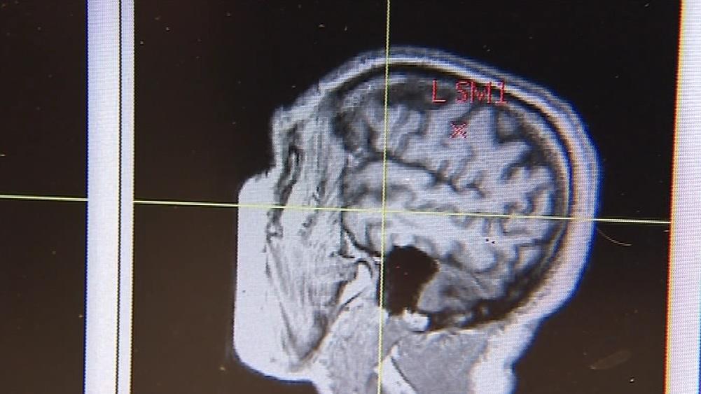 Parkinsonova nemoc se projevuje odumíráním nervových buněk