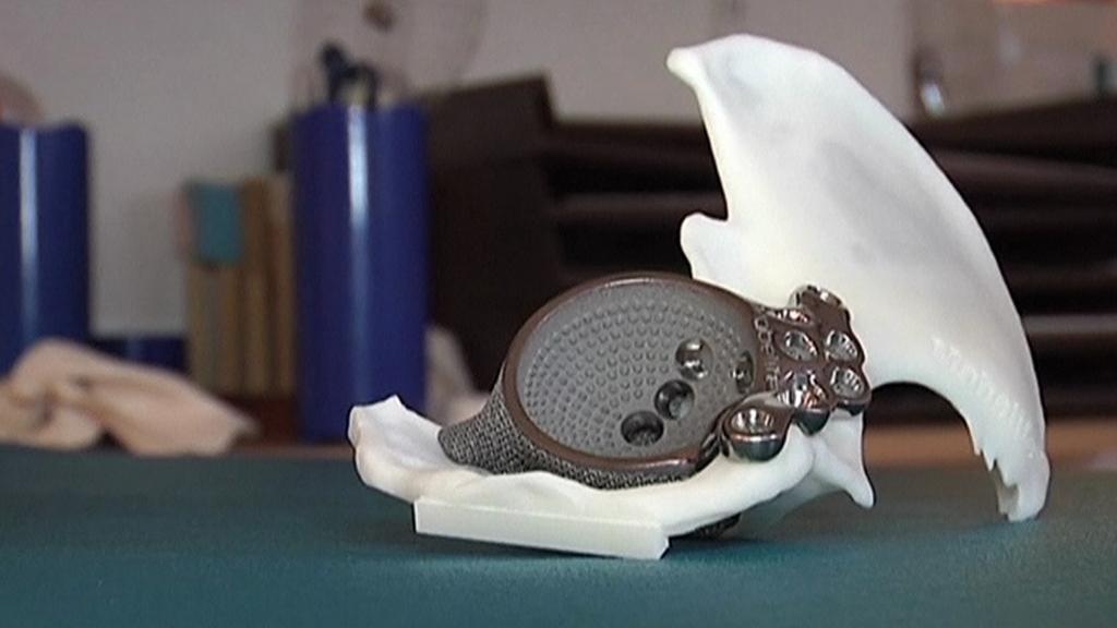 Implantát z 3D tiskárny