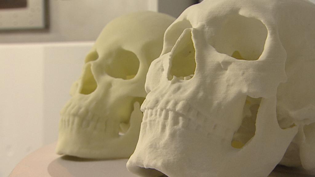 Model lebky vzniklý 3D tiskem