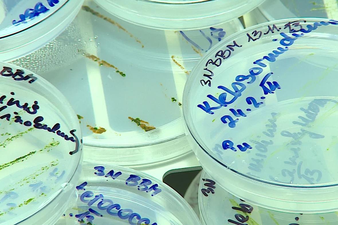Vzorky v laboratoři