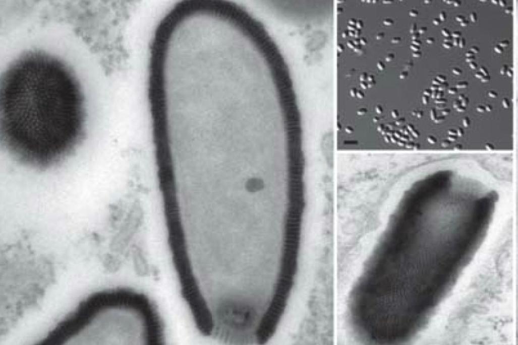 Améba napadená 30 000 let starým virem
