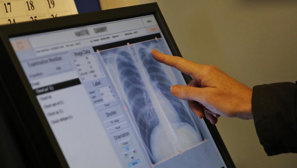 Vyšetření plic