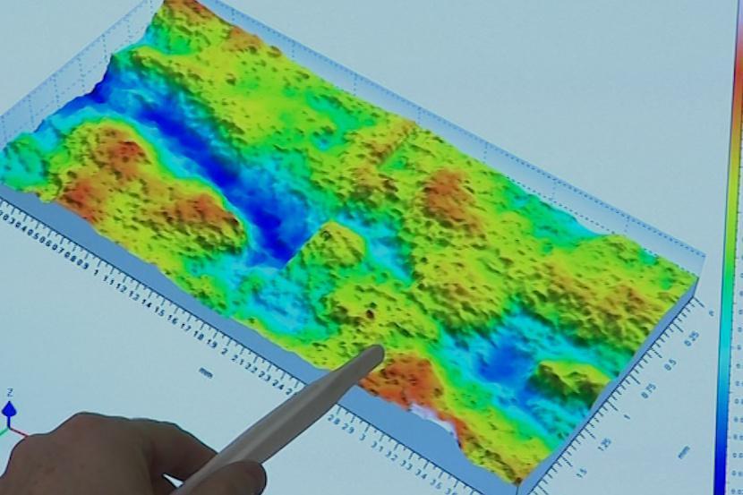 3D skener umožní sledovat změny v kvalitě kůže