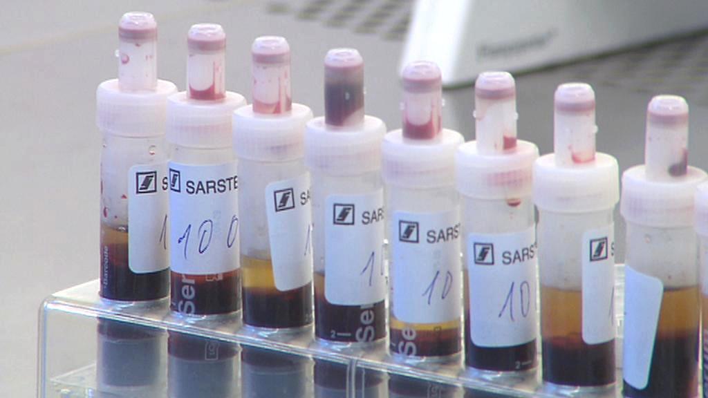 Vyšetření krve na přítomnost viru HIV