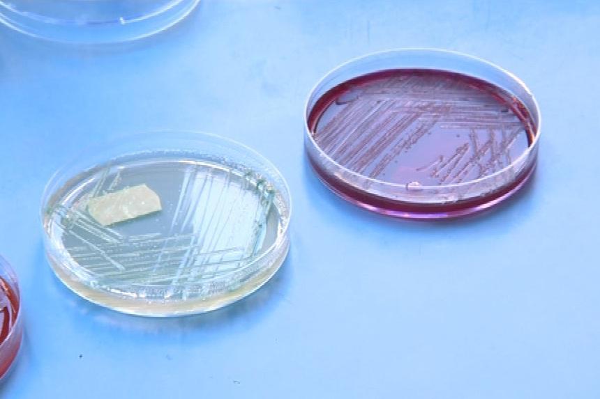 Mikrobiologický výzkum