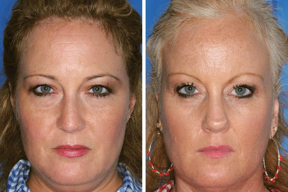 Studie dopadu kouření u dvojčat