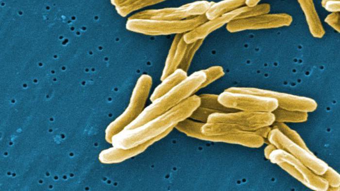 Mykobakterium způsobující tuberkulózu