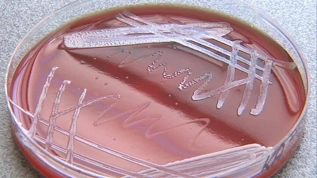 Miska s bakteriemi