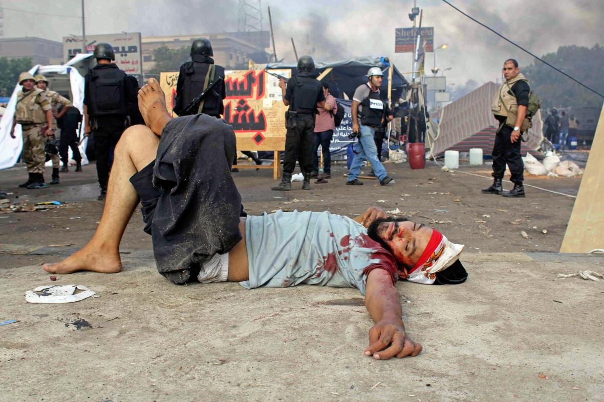 Raněný egyptský demonstrant