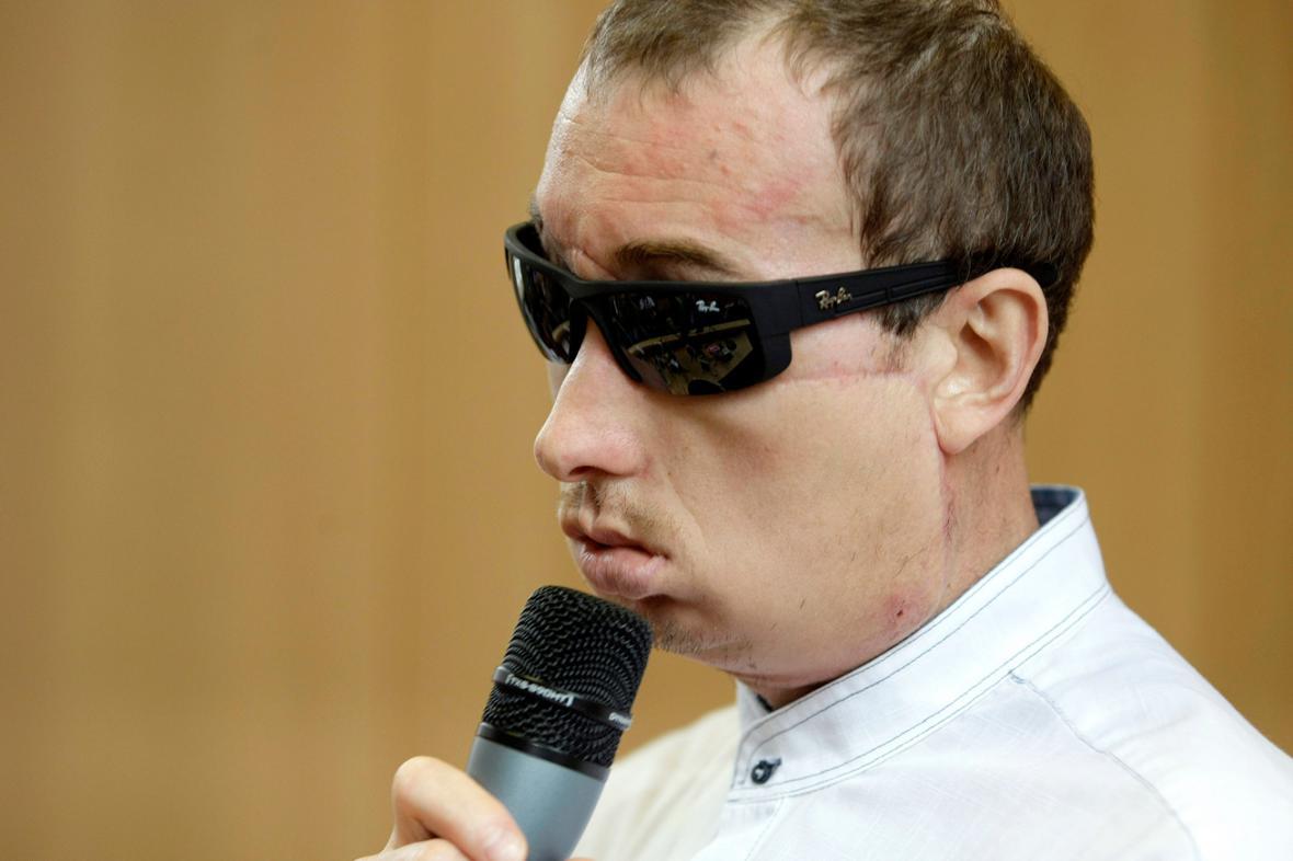Polák Grzegorz po transplantaci obličeje