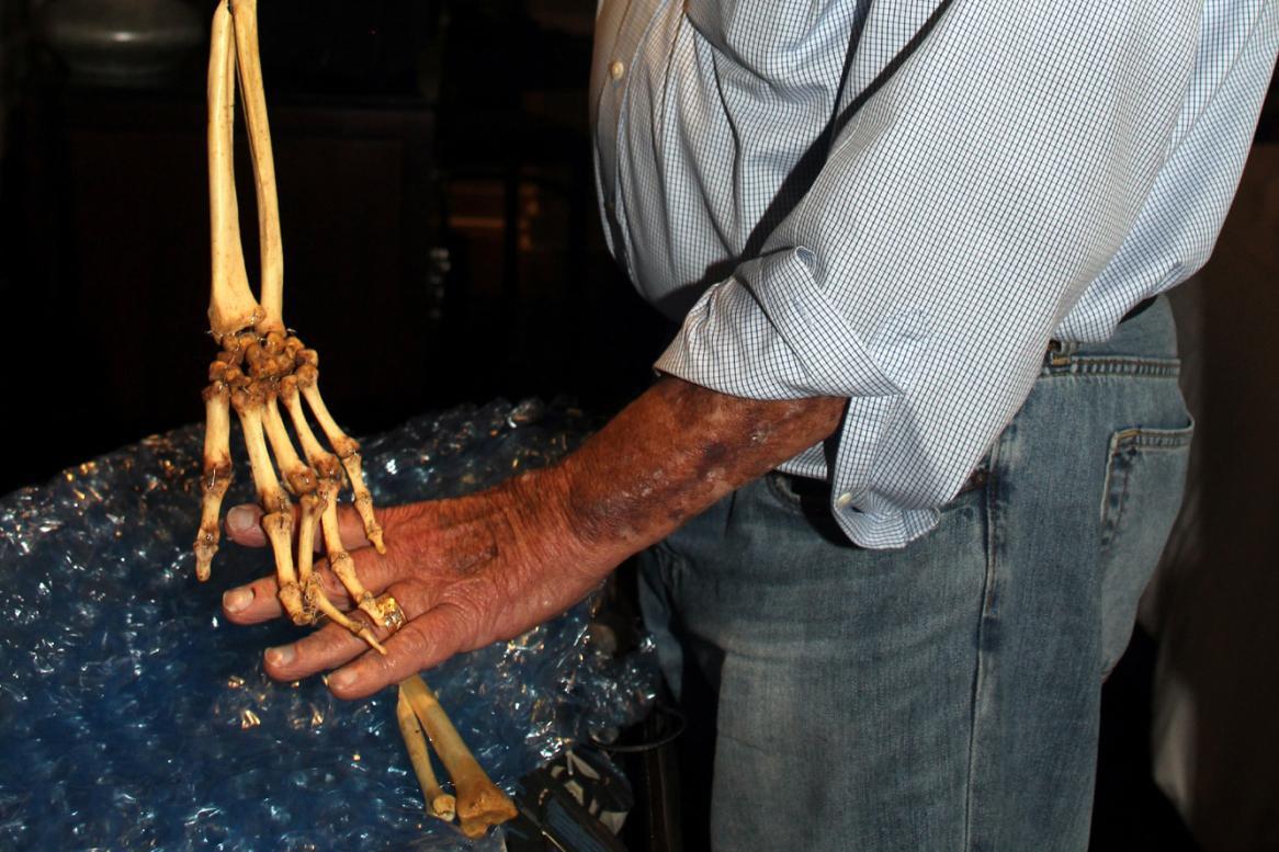 Doktor Axelrad s vypreparovanou rukou