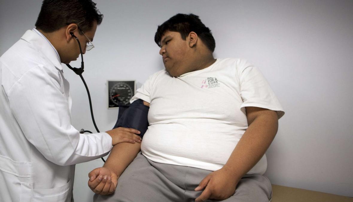 Léčba obezity