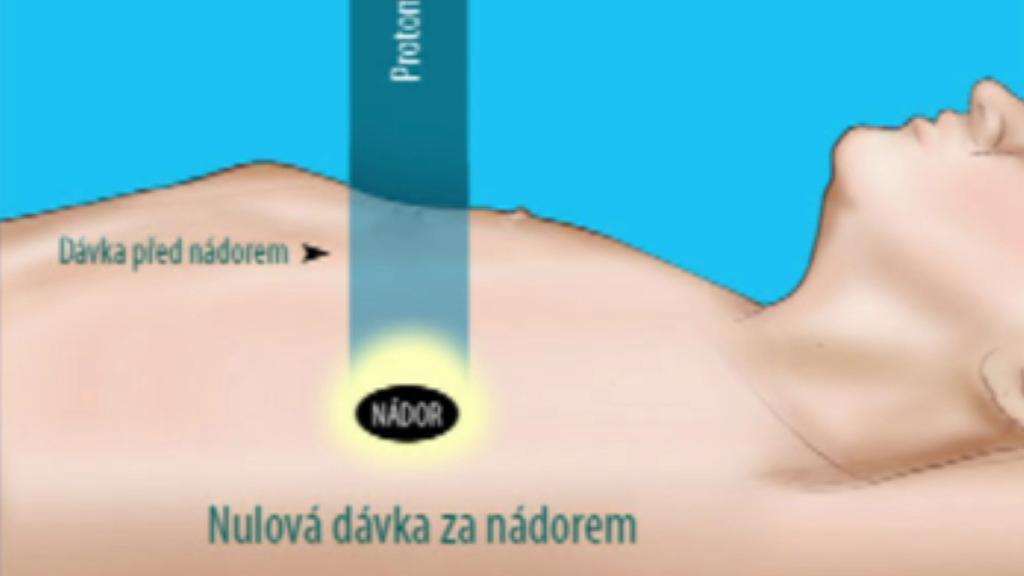 Protonový paprsek pronikne pouze k nádoru