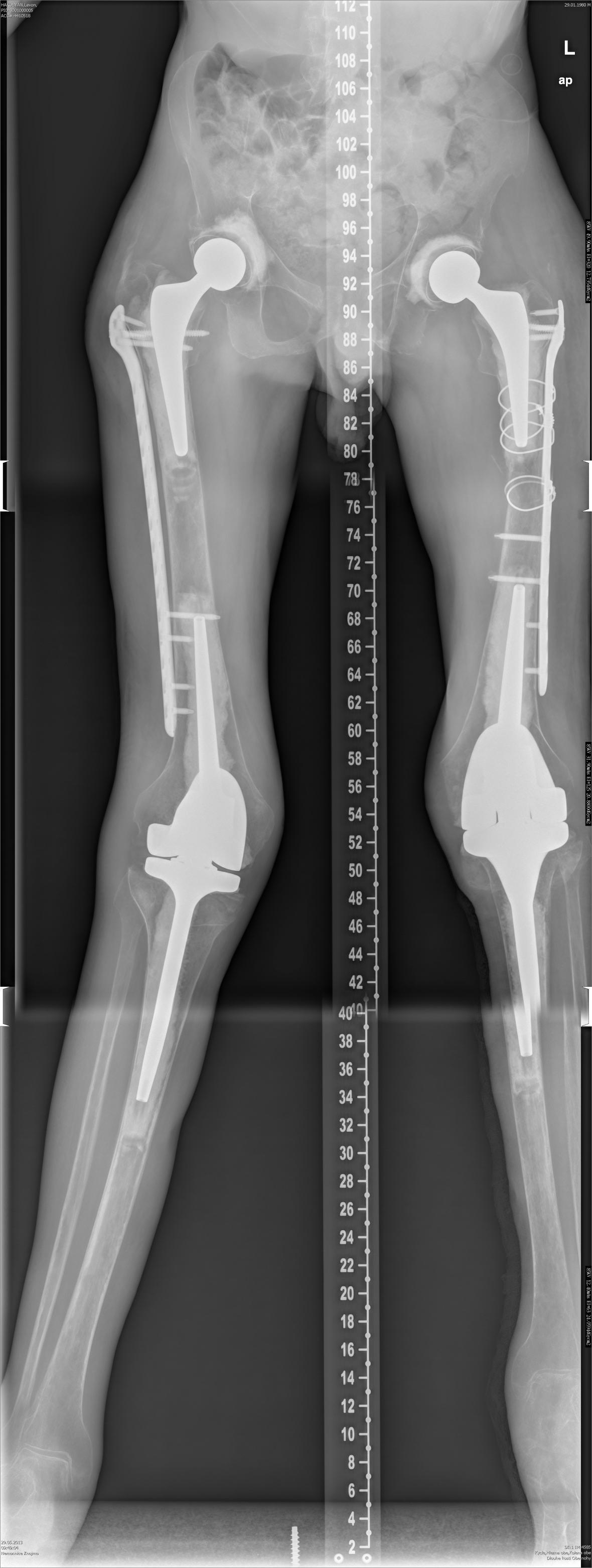 Rentgenový snímek Levona Hakobyana po sérii operací. Vidět jsou čtyři umělé klouby i výztuže kostí