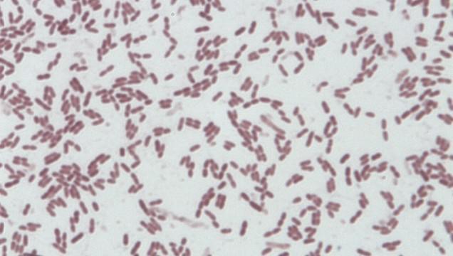 Nová bakterie má tyčinkový tvar a bičíky