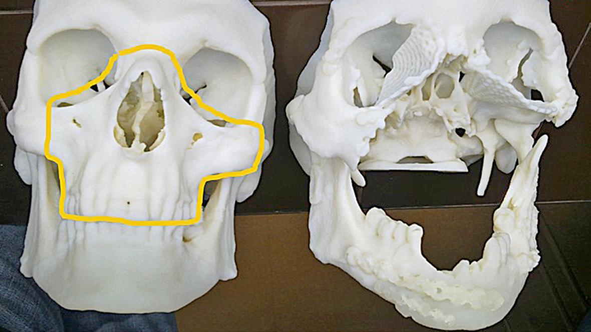 Lebka muže, kterému v Polsku transplantovali obličej